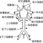 ウィリス動脈輪