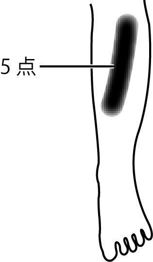 点をつなぎ感覚鈍麻の領域は帯状に広がっていると考える