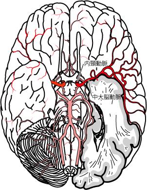脳底部での中大脳動脈の走行