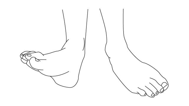 足部の三平面運動