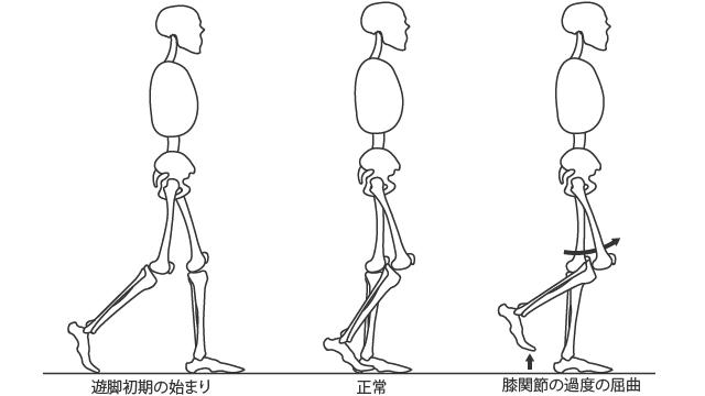膝関節の過度の屈曲による股関節の屈曲